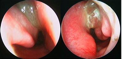萎缩性鼻炎症状